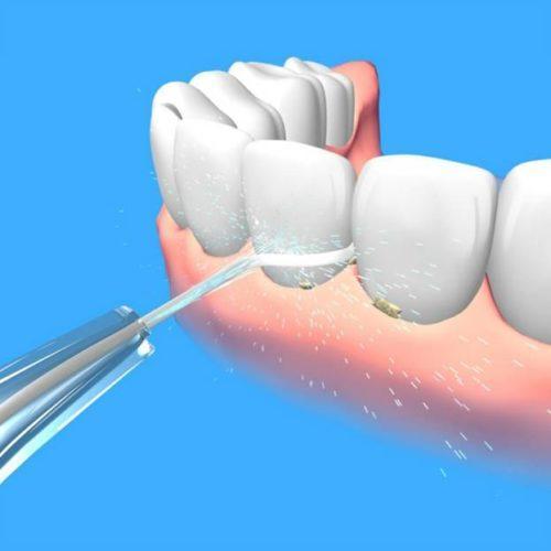 Напор воды, направленный на зубы