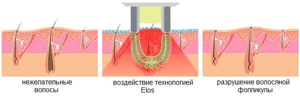 Технология элос-эпиляции