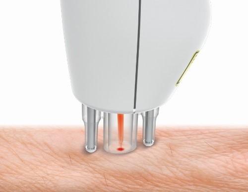 Работа лазерного эпилятора