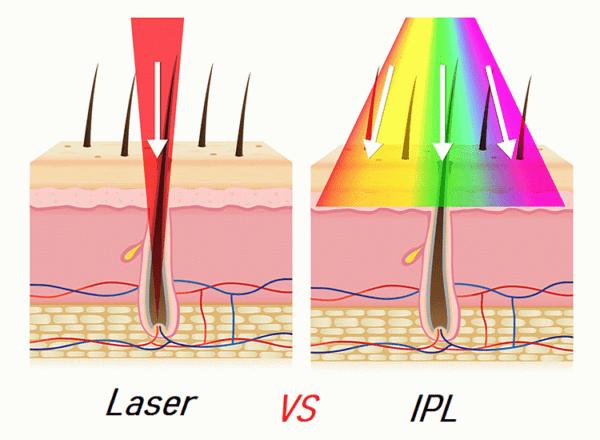 лазерная и фотоэпиляция разница